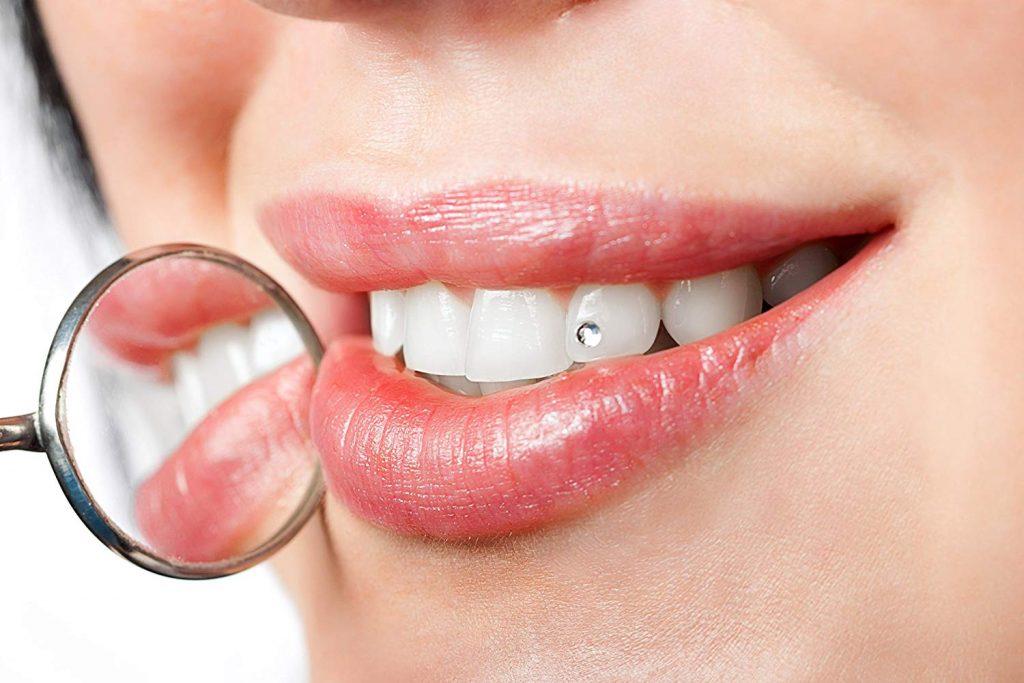 piercing smile dientes separados