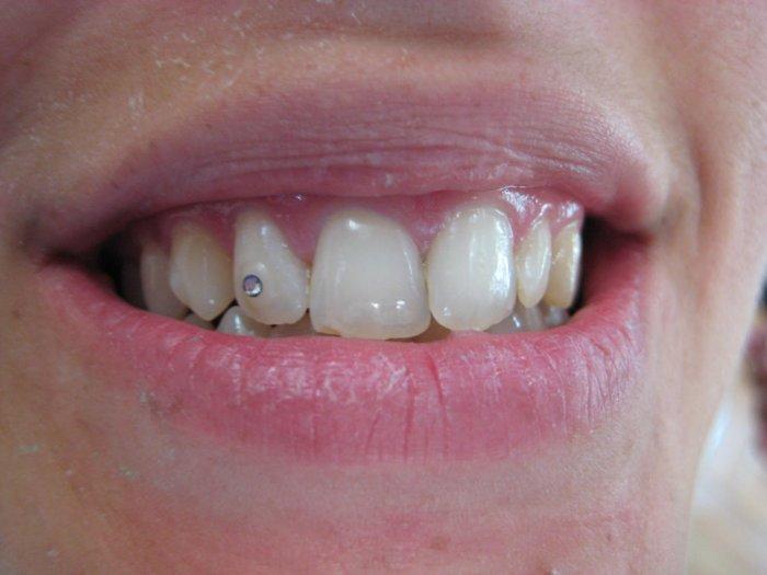 piercing en los dientes